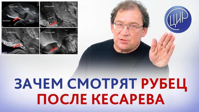 Рубец на матке после кесарева сечения Что НА САМОМ ДЕЛЕ смотрит врач когда оценивает рубец на матке