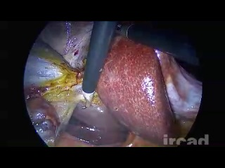 Aberrant_biliary_ducts__Luschka_s_ducts__in_a_laparoscopic_cholecystectomy___Laparoscopic_surgery_on___the_e_surgical_reference_
