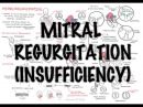 Mitral Reguritation (insufficiency) - Overview (signs and symptoms, pathophysiology, treatment)