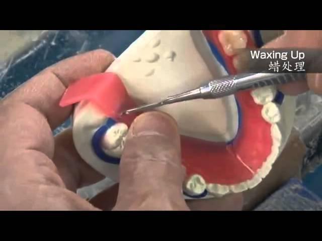 Perfect Dentures