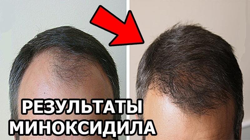 Миноксидил для волос Minoxidil Лечение облысения миноксидилом Как остановить выпадение волос