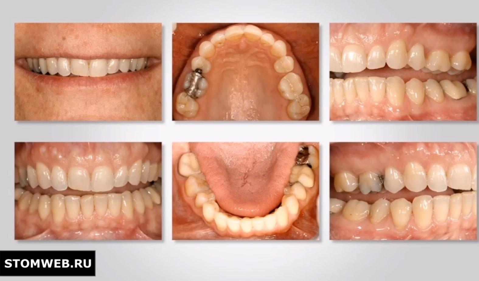 Фотография в стоматологии