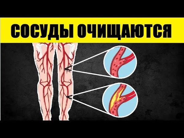 Эти 5 Продуктов Пулей Очищают Сосуды и Артерии От Холестериновых Бляшек. Скорее Добавьте в Рацион