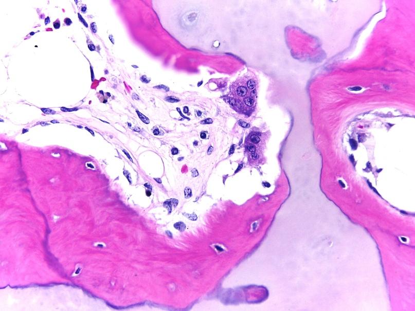 1 — ткань кости, гематоксилин-эозин; 2 — ткань кожи, гематоксилин-эозин; 3 — тучная клетка, Гимза; 4 — ; 5 — .