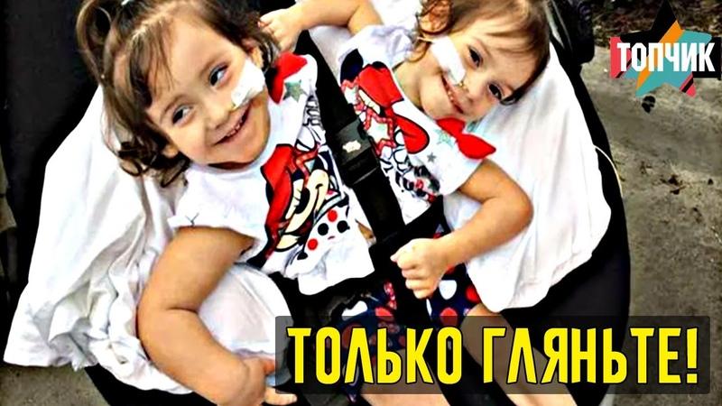 Сиамских близнецов разделили в 2-летнем возрасте. Как они выглядят спустя почти 4 года