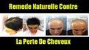 Remede Calvitie - Recette Naturelle Contre La Perte De Cheveux et Avoir Une Nouvelles Pousses