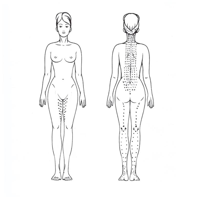 Магистральный коктейль и когда встает вопрос: «Где эффект от липолитической мезотерапии»?, изображение №1